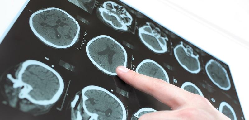 Changements cérébraux liés aux thérapies cognitivo-comportementales